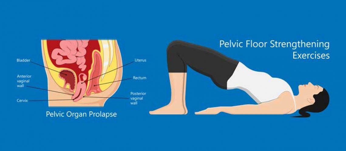 Pelvic-Organ-Prolapse-Exercises